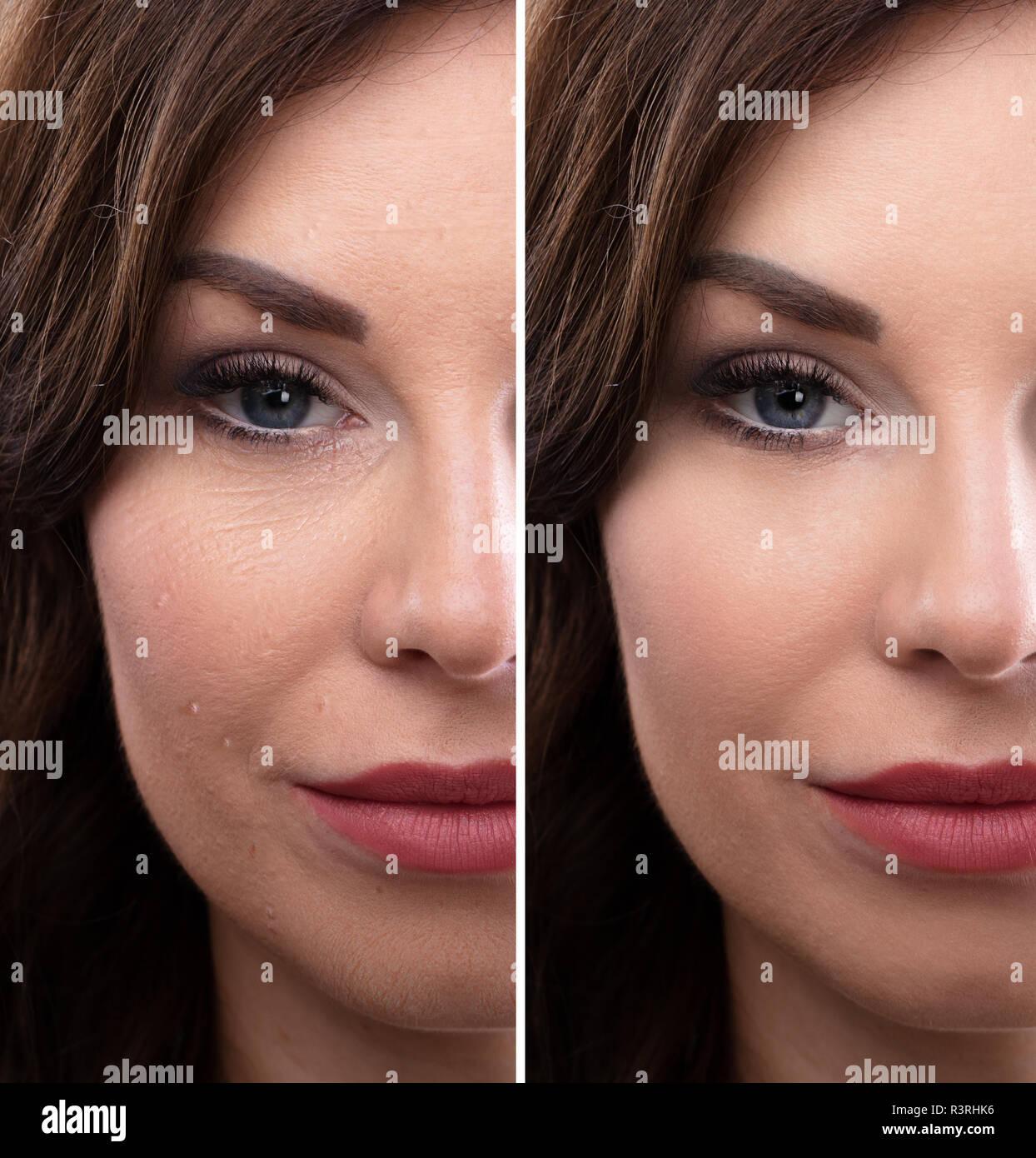 df063fbae7f0 Portrait einer jungen Frau Gesicht vor und nach der kosmetischen ...