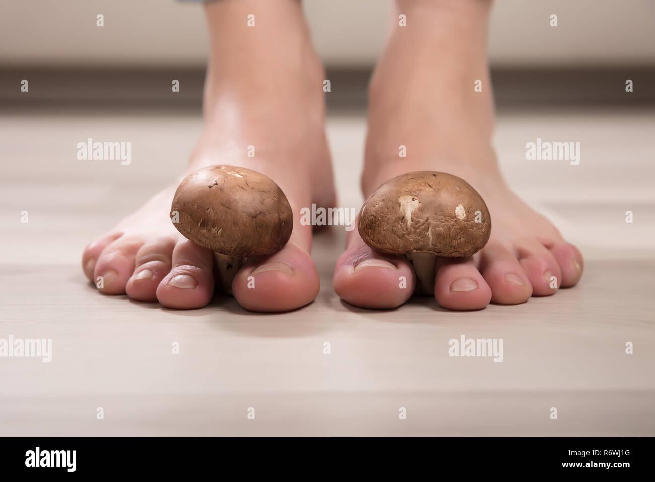 Pilze zwischen Frau Zehen Stockfoto, Bild: 227985676 Alamy