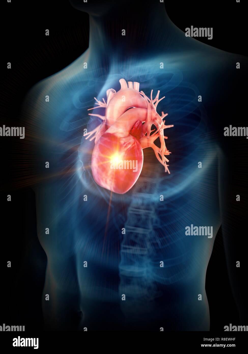 Abbildung: eine schmerzliche Herz. Stockbild