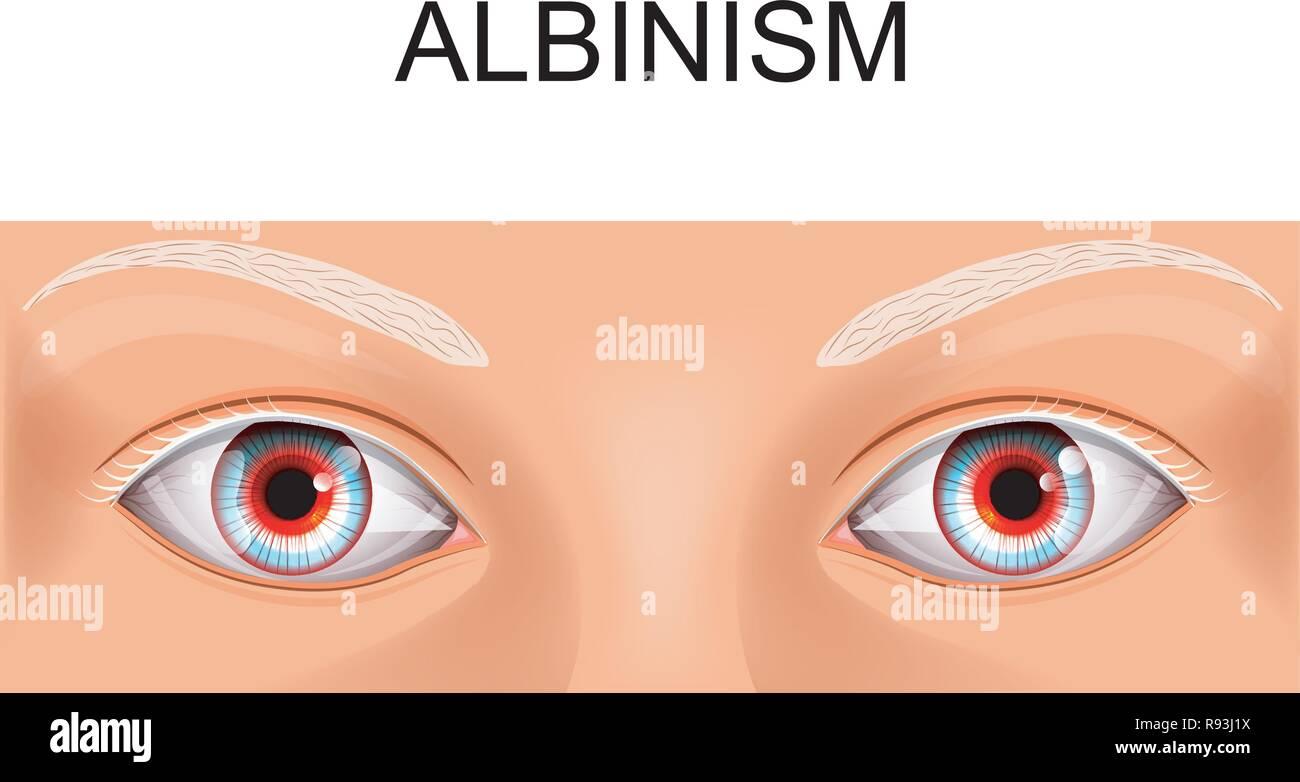 Vector Illustration der Augen einer Person Leiden von Albinismus ...