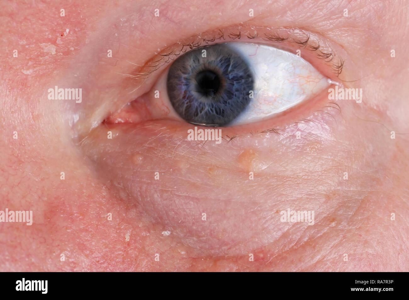 Wunde Trockene Haut Und Augen Auf Dem Gesicht Eines älteren Mannes