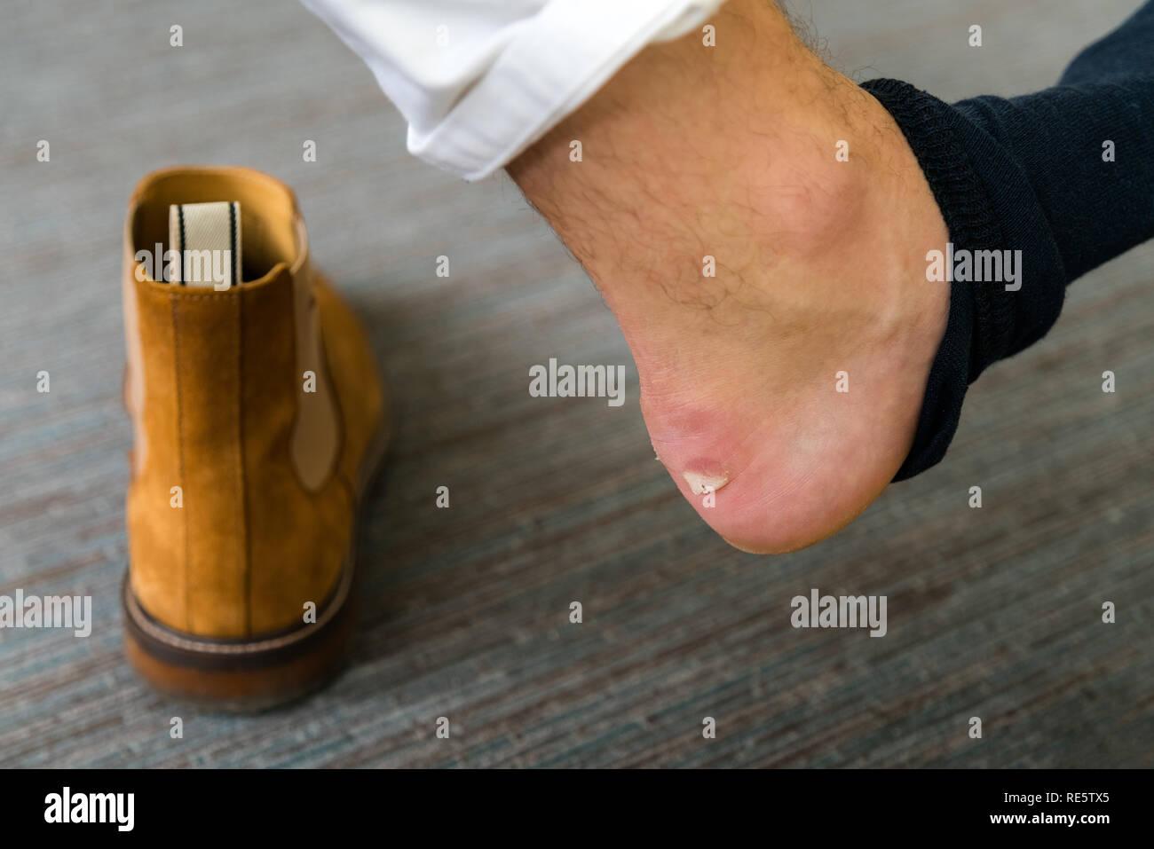 Schmerzhafte Ferse Wunde auf mans Füße durch neue Schuhe verursacht. Knackte schrecklich Blase auf der Ferse mit neuen braunen Mode Schuhe herumliegen. Nasse blutigen Pai Stockbild
