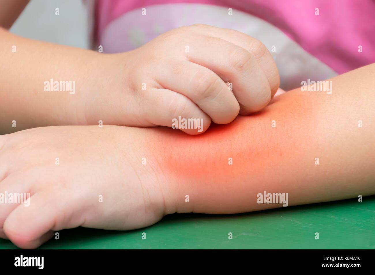 allergie gegen mückenstiche
