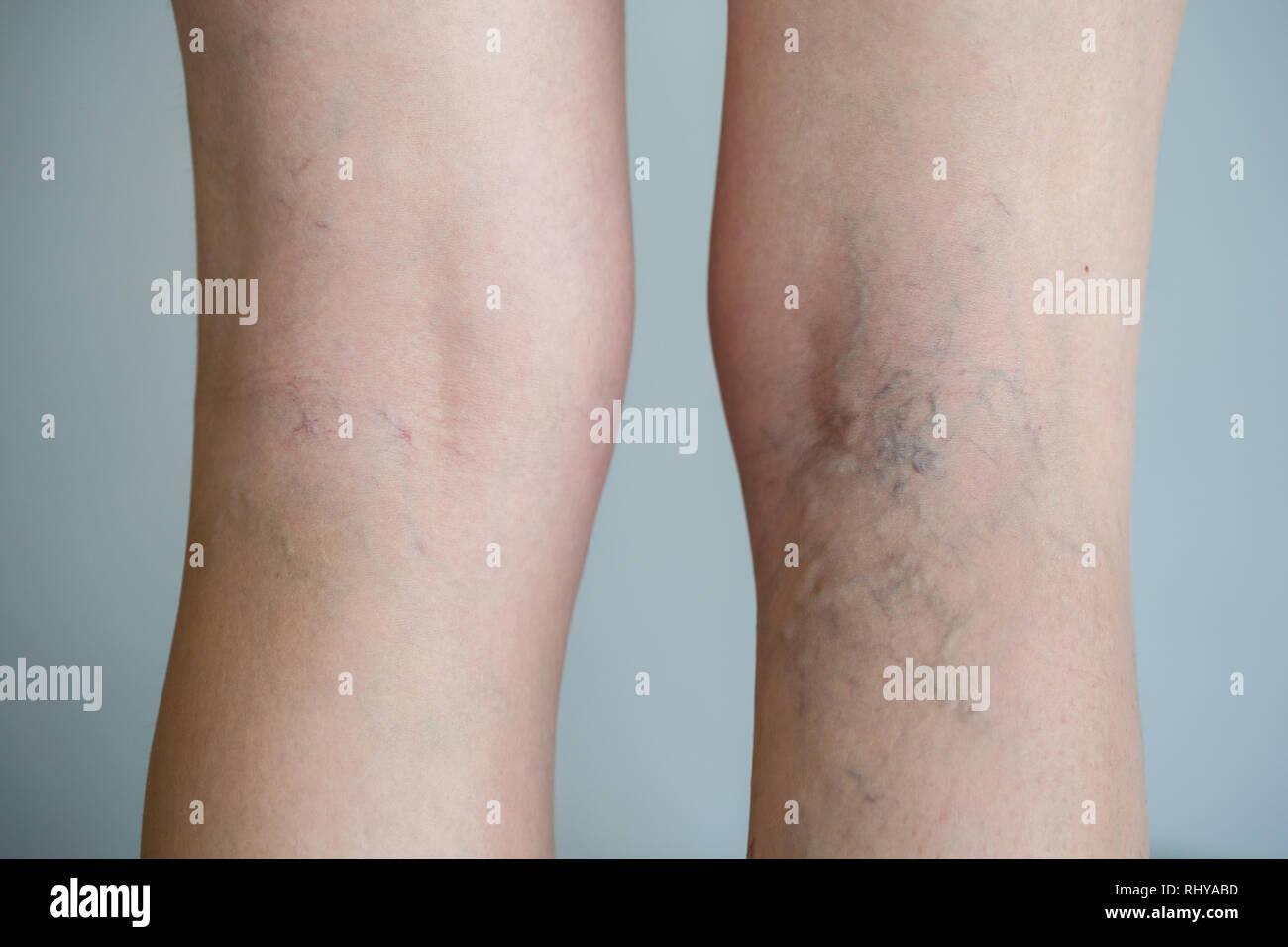 Schmerzhafte Krampfadern (Besenreiser, Varizen) am stärksten betroffenen Bein. Alterung, Alter Krankheit, ästhetisches Problem Konzept. Stockbild