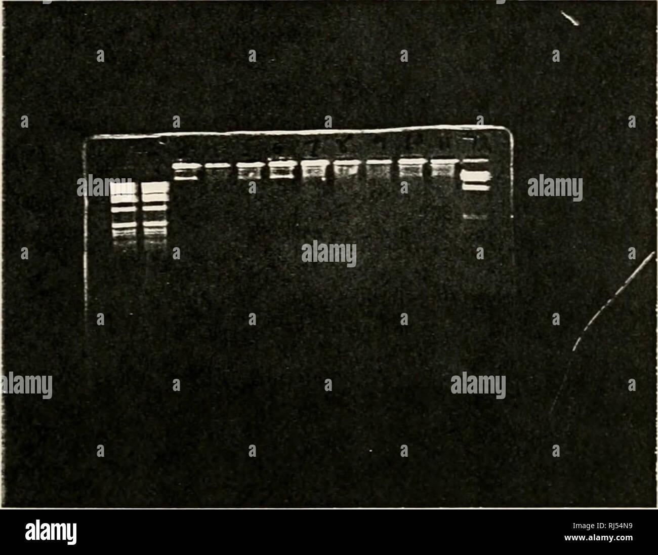 Chromosom Zuordnung von menschlichen Genen. Genome Project ... on