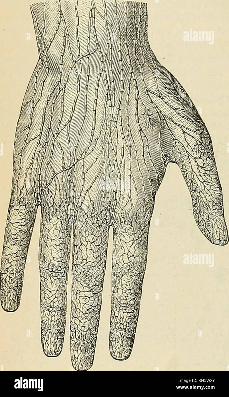Unterarm knoten Lipome (Knubbel