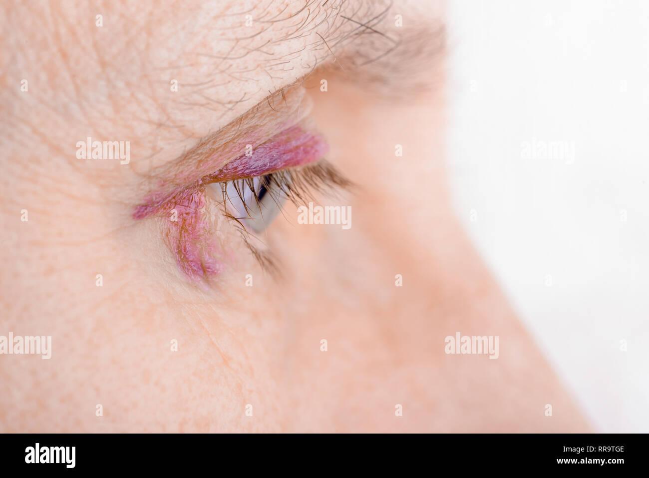 Hoden bluterguss Hodenschwellung