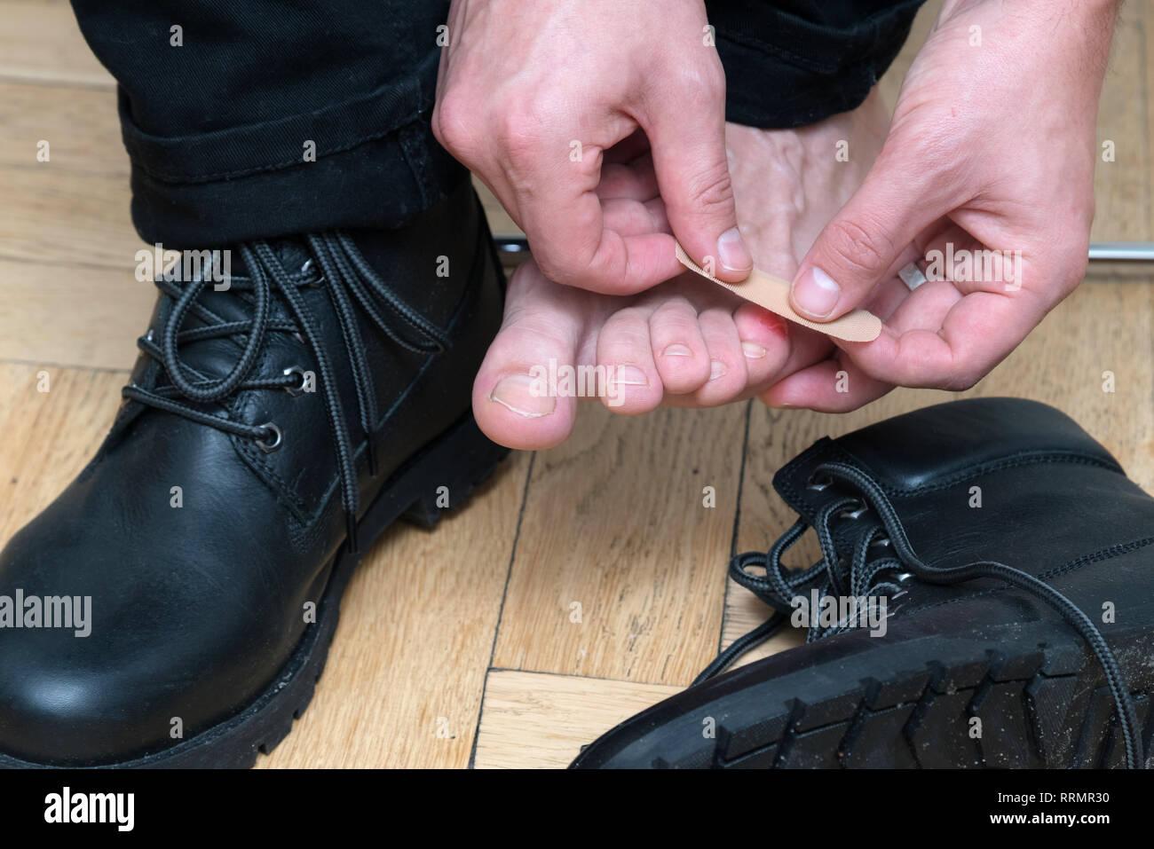 Mans hand Anwendung Putz auf schreckliche Blase auf der Ferse. Nasse blutigen Schmerzen im Bereich der Haut auf den Menschen Fuß mit medizinischen Gips. Schmerzende Wunde auf mans Füße Cau Stockbild