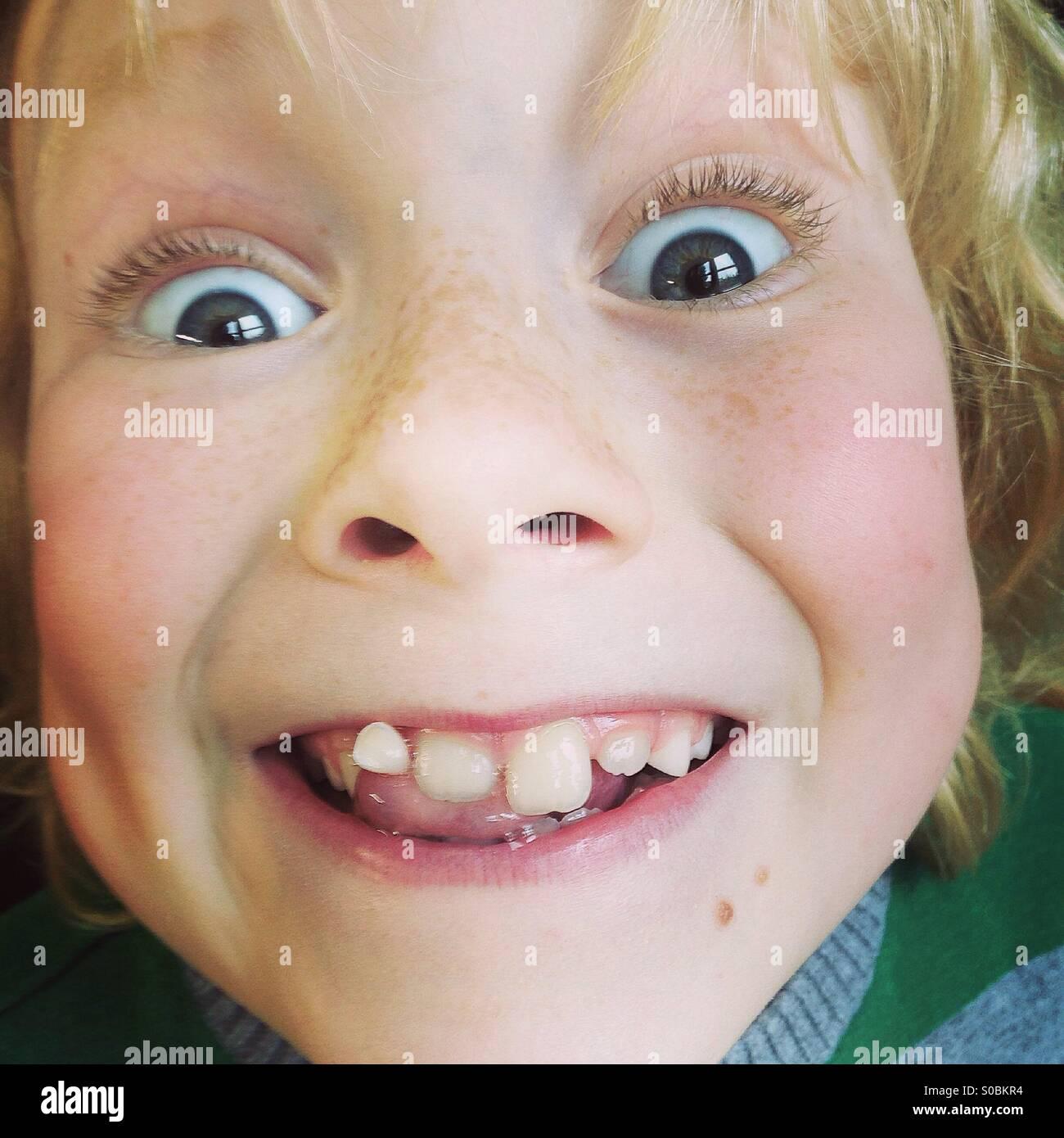 Wackelige Zahn Stockbild