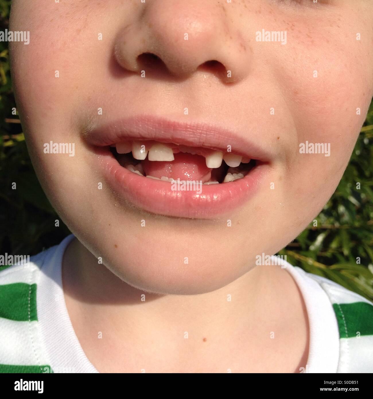 Junge mit vorderen Zahn fehlt Stockbild