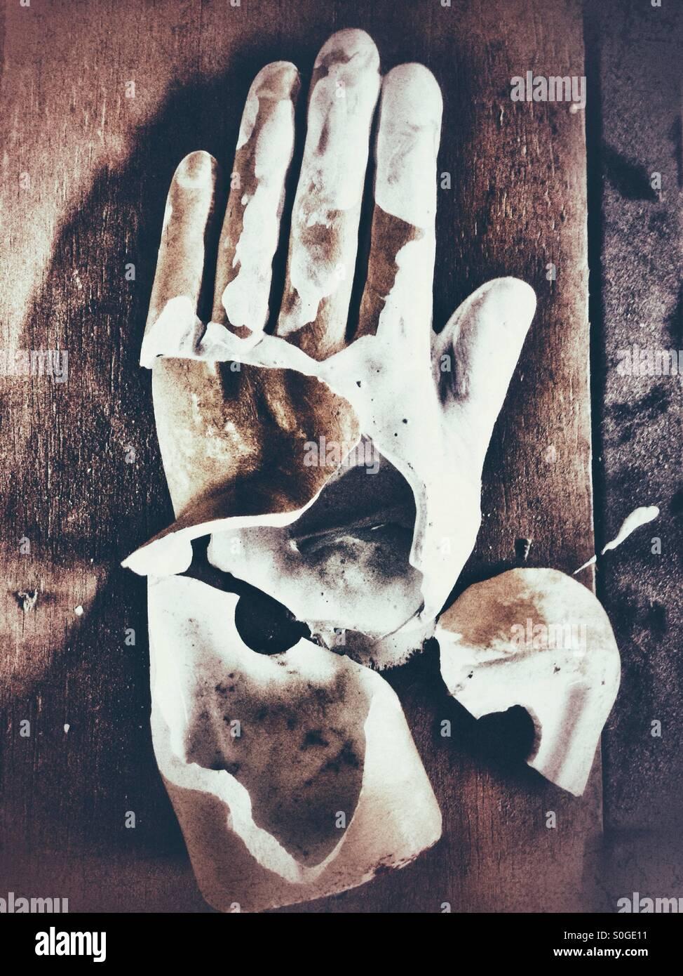 Gebrochenen Hand Stockbild