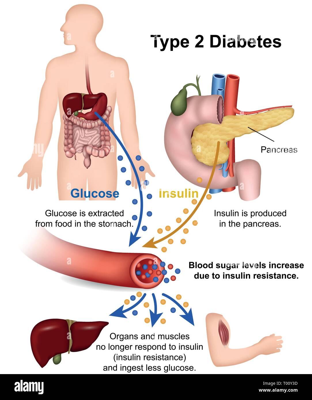 Weißt Du, was Diabetes bedeutet? Eine Diabetes Erklärung für Kinder - diabetes.moglebaum.com