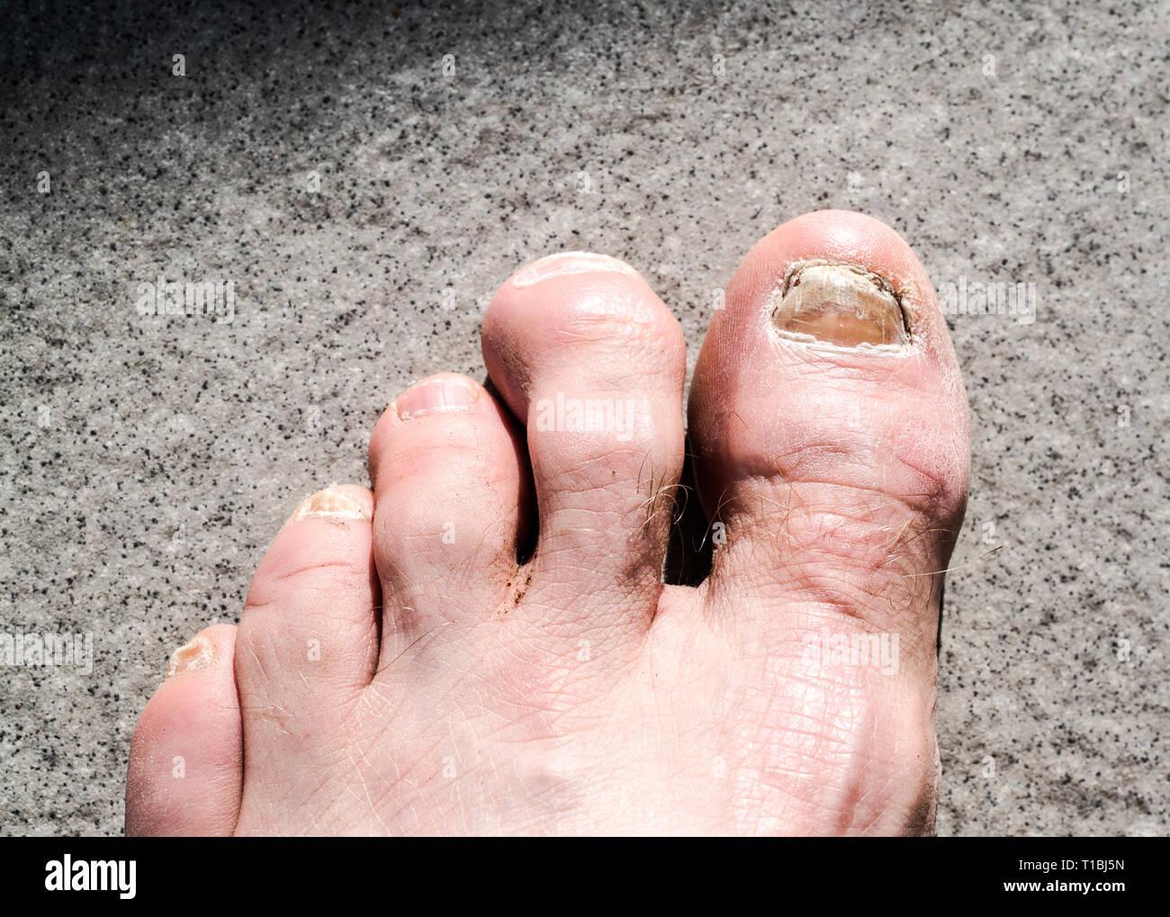 Füße hat mein freund hässliche Hässliche