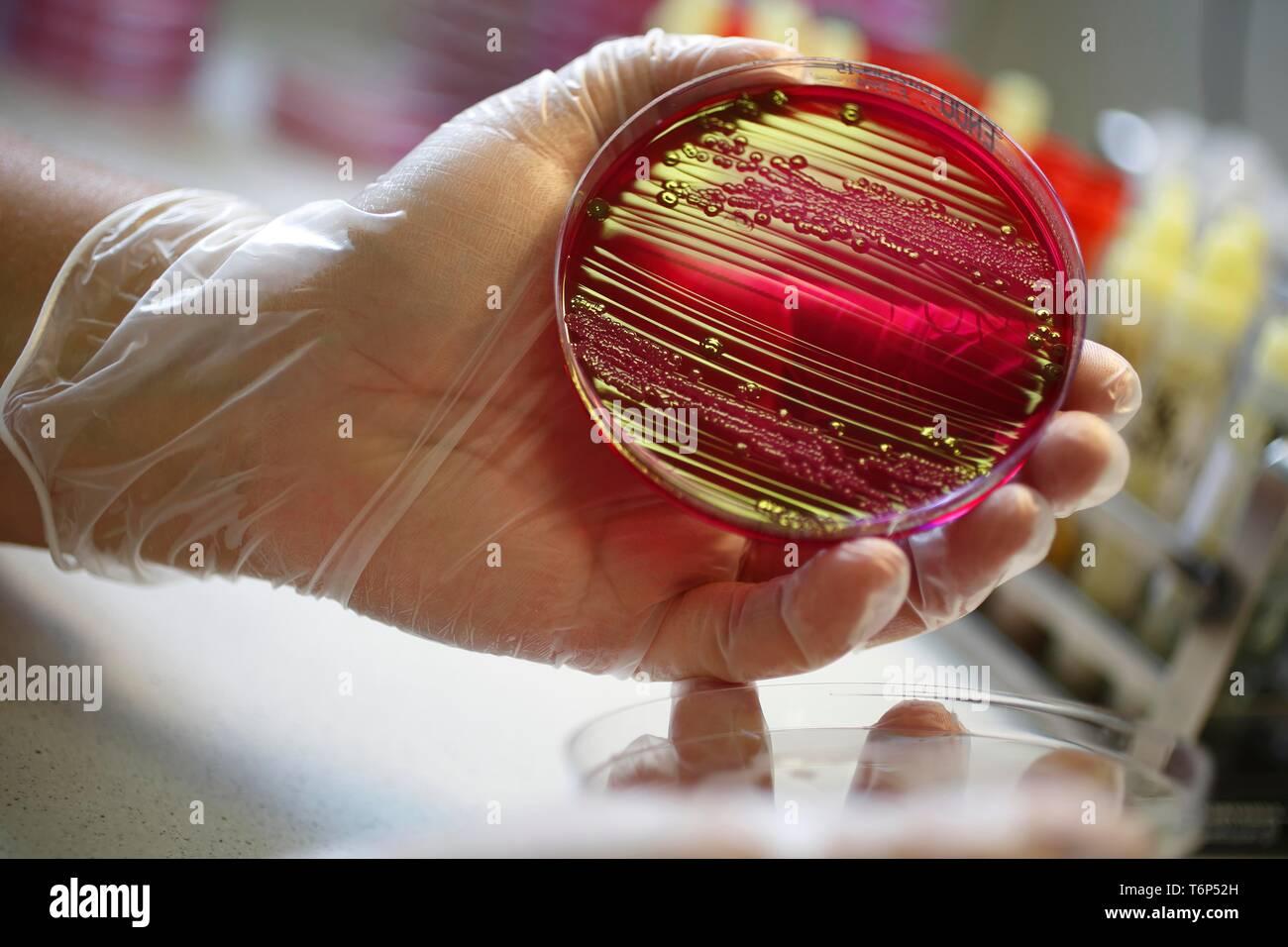 Petrischale mit Nährmedium mit bakteriellen Kulturen, medizinisches Labor, Karlovy Vary, Tschechische Republik Stockbild