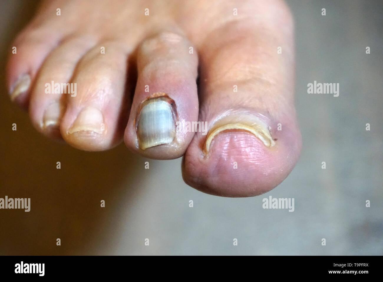 Fußzeh gebrochener VIDEO: Großer