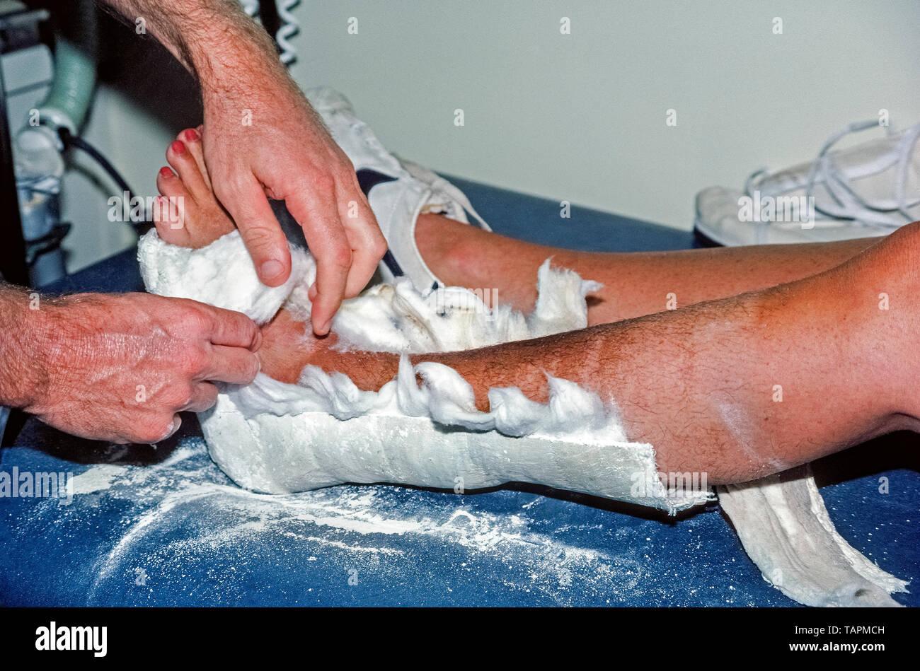 Ein orthopädischer Arzt zerreißt die schützende Auskleidung aus Baumwolle im Gips, dass die gebrochenen Knöchel einer kaukasischen Frau unterstützt, während die gebrochene Knochen in ihrem linken Bein heilte. Zunächst der Gips wird perforiert mit einem speziellen elektrisch angetriebenen Cast sah mit einem oszillierenden Blade, dass anstelle von Spinnen, die verhindert, dass die Haut vibriert. Die oszillierende Säge für den medizinischen Einsatz im Jahr 1945 von einem amerikanischen orthopädischen Chirurgen patentiert wurde, Dr. Homer Stryker, und es ist immer noch die häufigste Form - schneiden Heute sah im Einsatz. Stockbild