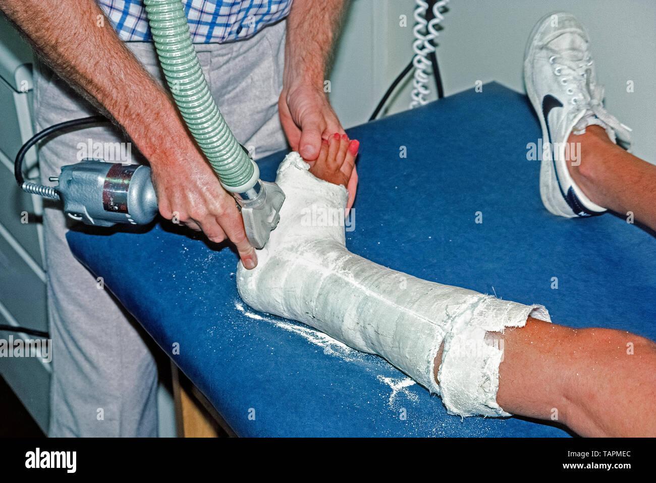 Eine spezielle elektrisch angetriebene Säge durch eine orthopädische Arzt verwendet wird Perforationen im Putz zu machen, dass die gebrochenen Knöchel einer kaukasischen Frau unterstützt, während die gebrochene Knochen in ihrem linken Bein heilte. Die Klinge dieses schwingenden cast Säge vibriert anstelle von Spinnen, die verhindert, dass die Haut. Nach Kürzungen in den Cast gemacht wurden, ist es neben ausgehebelt, so dass der putz und innen Baumwollfutter leicht von den verletzten Anhängsel entfernt werden kann. Die oszillierende Säge für den medizinischen Einsatz im Jahr 1945 von einem amerikanischen orthopädischen Chirurgen patentiert wurde, Dr. Homer Stryker. Stockbild