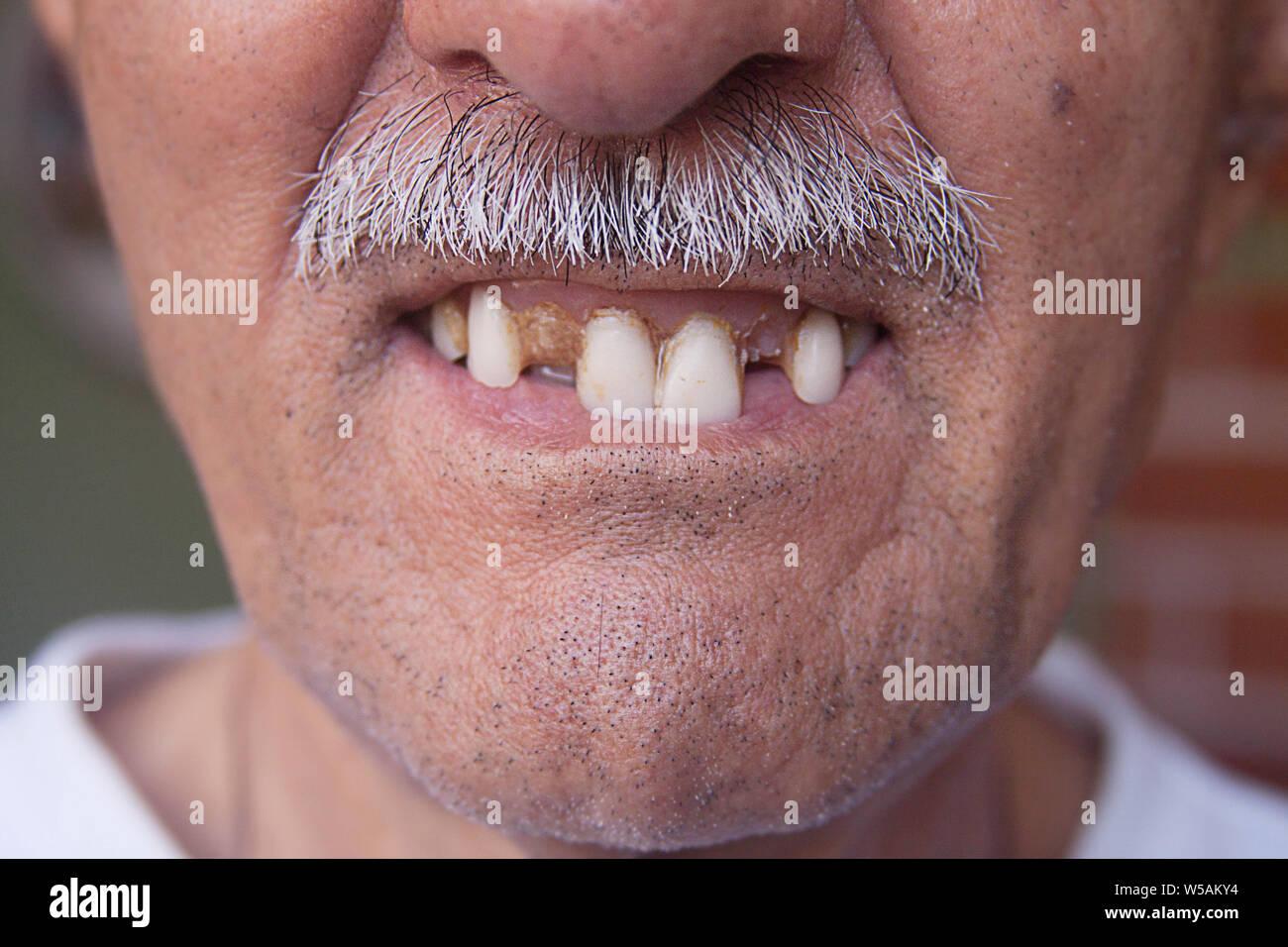 Gesicht hübsches hässliche zähne Ein hübsches
