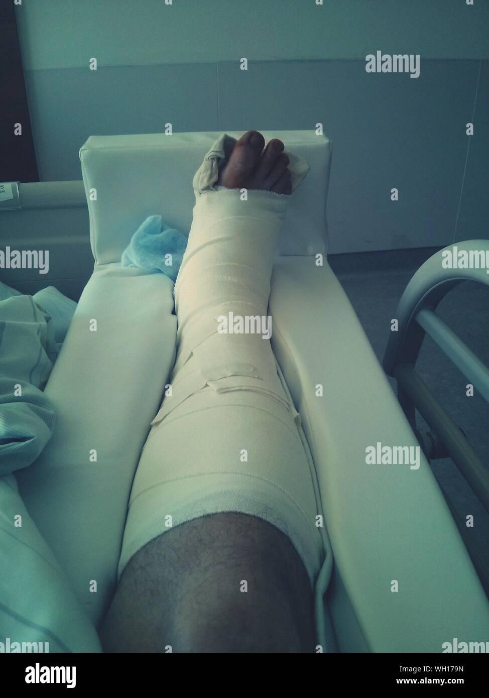 Beine gebrochen gips beide Beide Arme