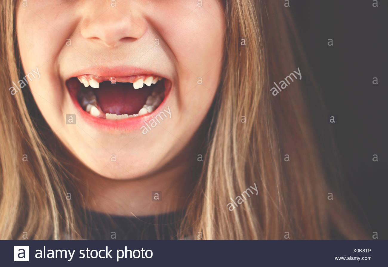 Nahaufnahme eines Spaltes gezahnten Mädchen Lachen Stockbild