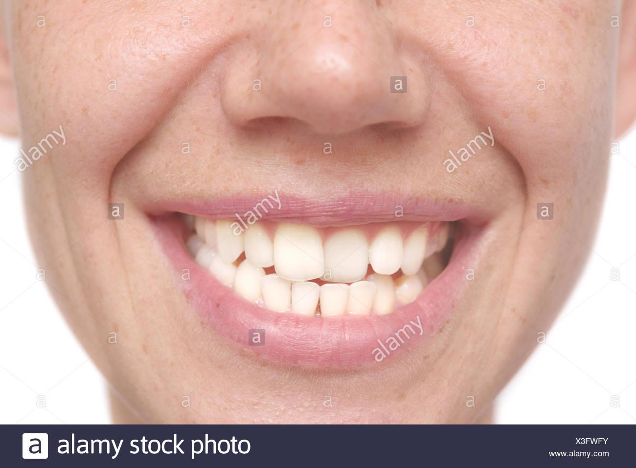 Zähne krumme Krumme Zähne: