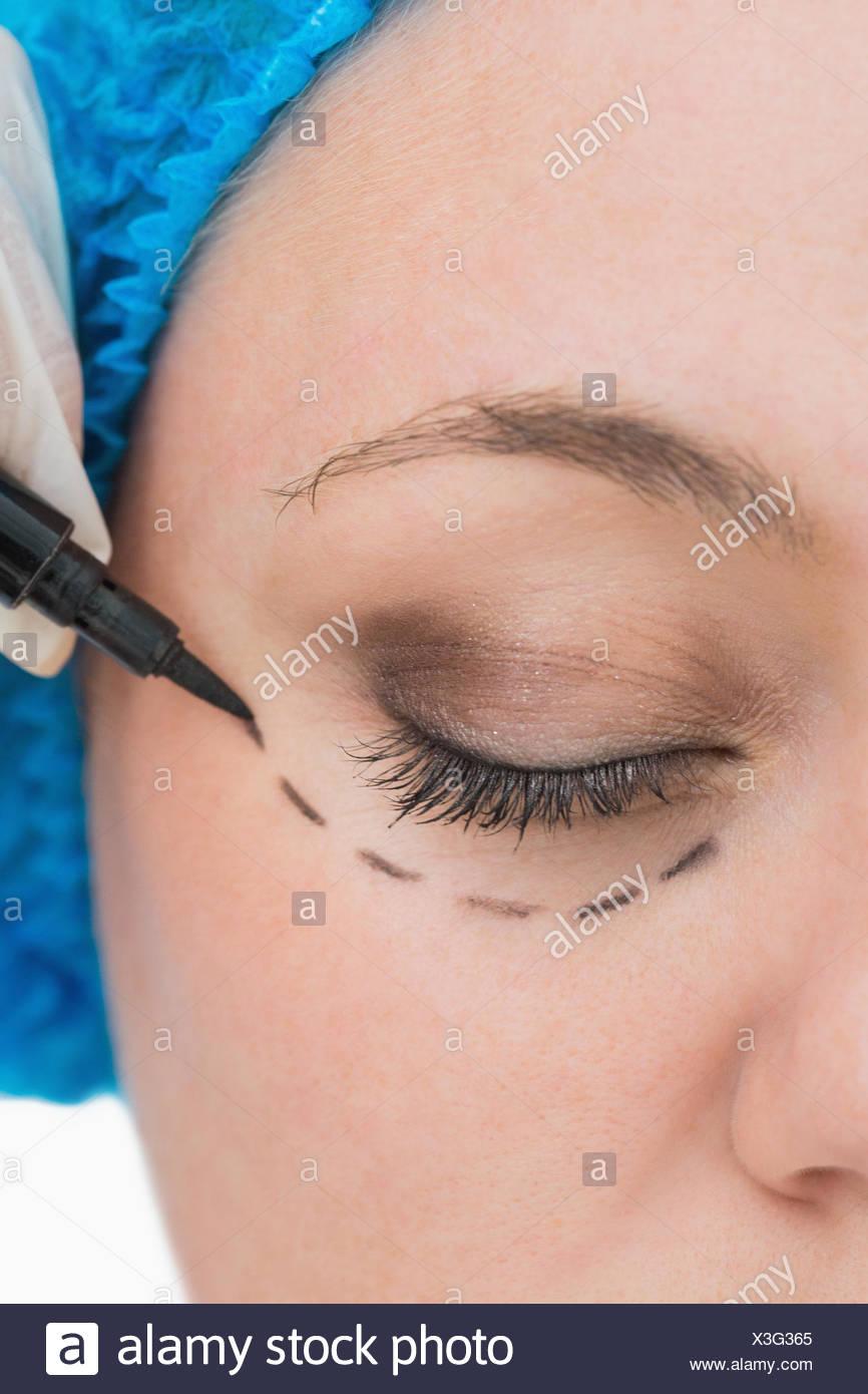 Arzt Um Auge Zeichnen Stockfoto Bild 277563613 Alamy