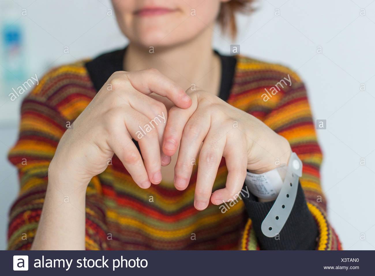 Hände einer Frau mit rheumatoider Arthritis. Stockbild