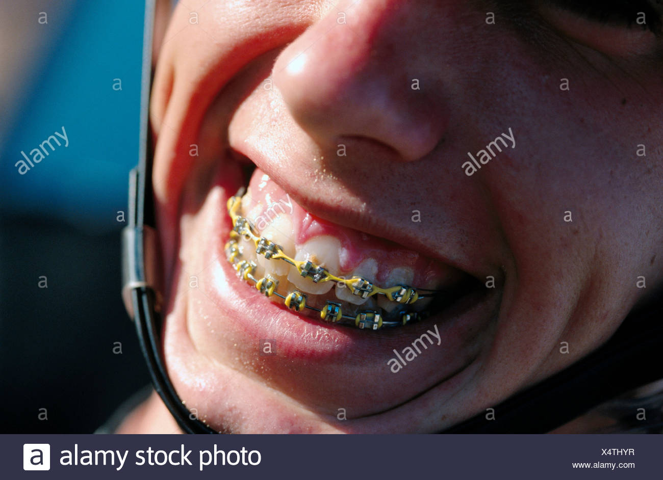 Teenager Die Lächelnd Mit Klammern An Den Zähnen Augen Nicht