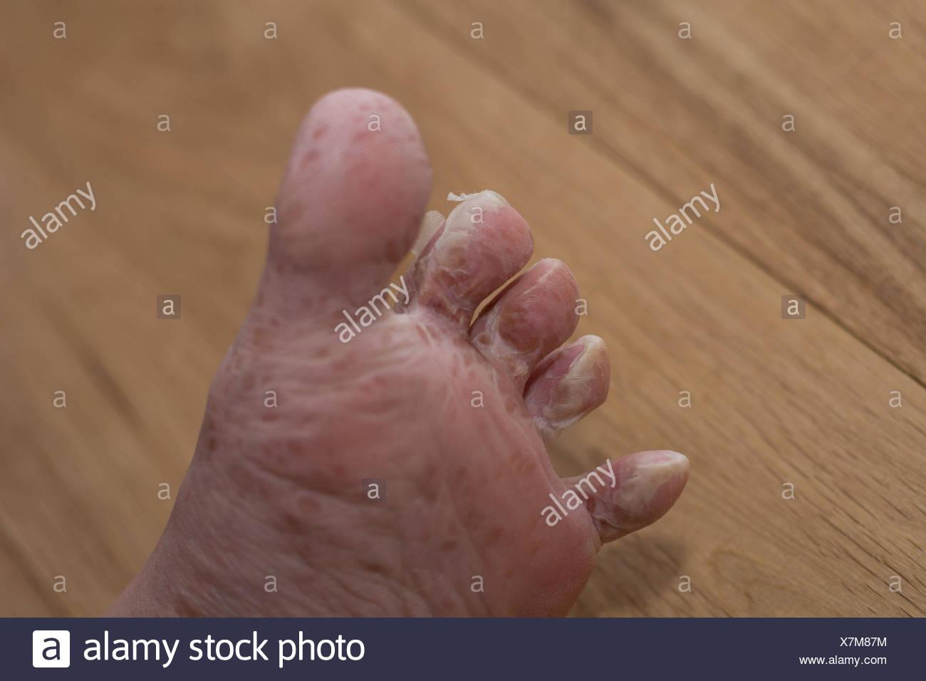 Haut schält sich