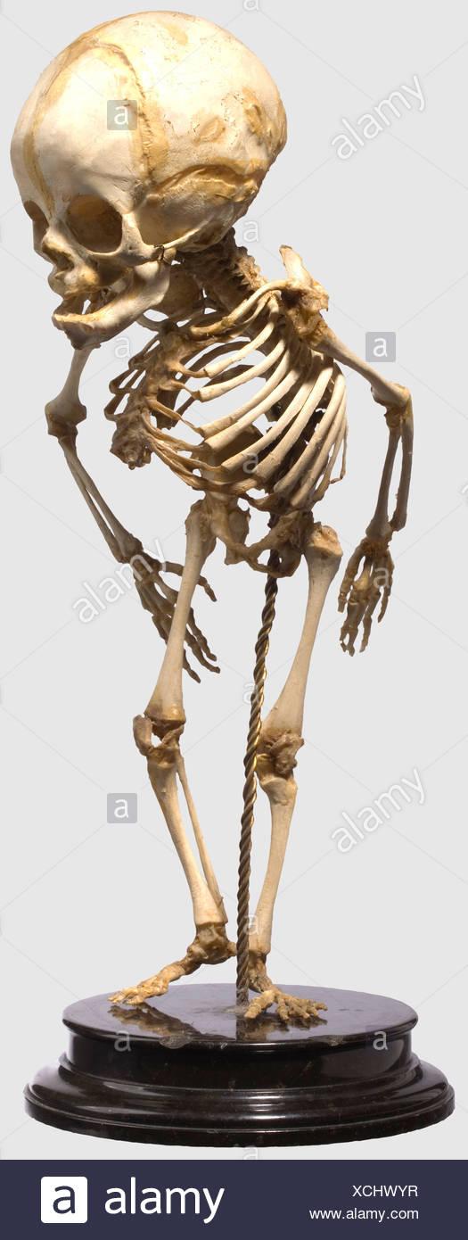 Großzügig Anatomie Skelett Spiele Galerie - Anatomie Von ...