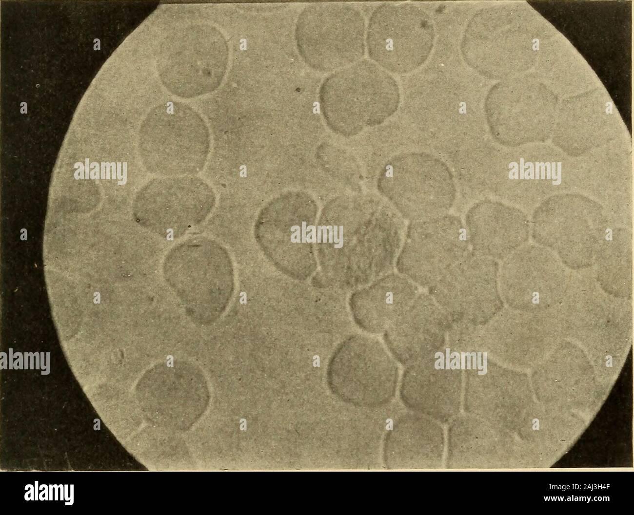 Reproducción Celular Inducida Y El Cáncer Fig 7 Los Leucocitos Granulados Están Manchadas Su Núcleo Está