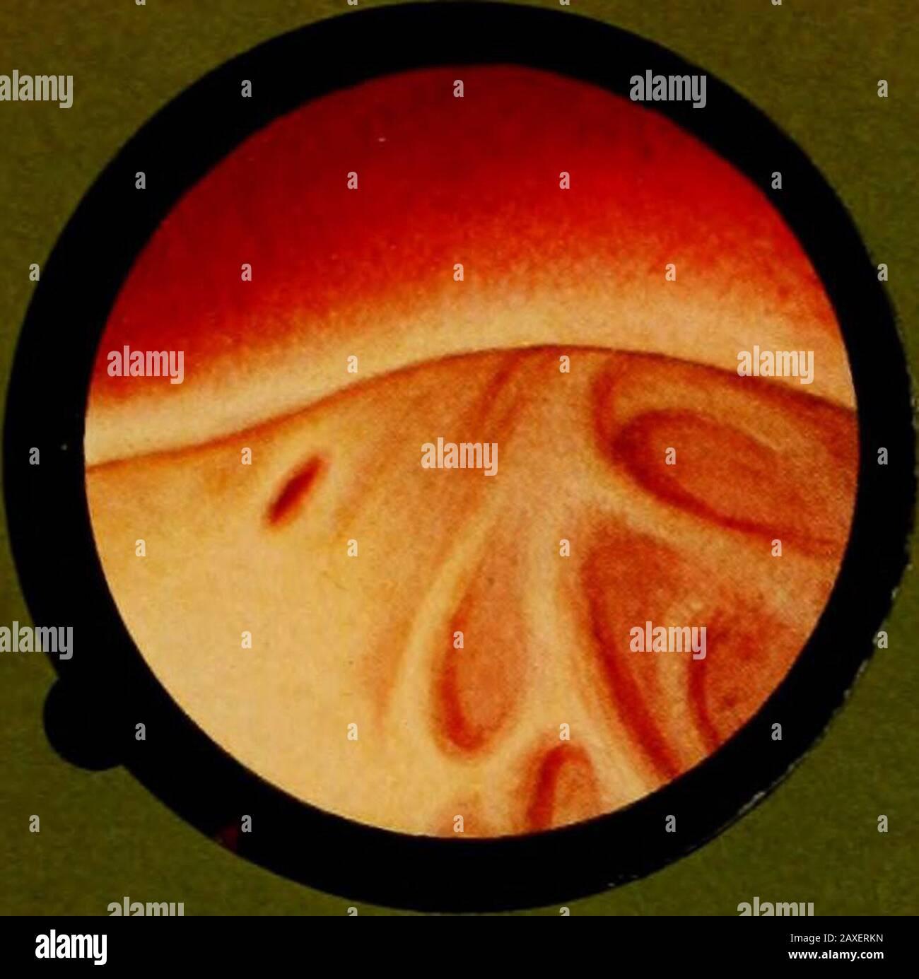 Traitâe pratique de cystoscopie et de cathâetâerisme urâetâeral . cidely convex. Pero con meatus perceevable de stillperceevable. Mismo aspecto con meato visible. La sangre suffusion en una prominencia prostática. Prominencia prostática observada en un cistoscopio de retrógrado. STAMPA XXXII. FLG. 1 Fig. 2 Fig. 3 Fig. 4. Fig. 5 Primo grado ilipertrofia prostatica, che lascia vedere loriflcio ureterale. Grado più acentuato dell ipertrofia, gia franciscana convessa; ma tuttavia sipué ancora scorgere il meato. Il medesimo aspetto, con meato visibile. Sufïusione sanguigna sopra una sporgenza prostatica. Sporgenza prostatica veduta Foto de stock