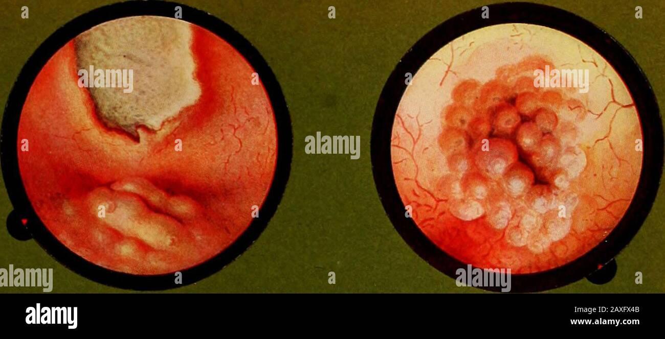 Traitâe pratique de cystoscopie et de cathâetâerisme urâetâeral . 1. — Meato le cui labbra sono edematizzate en massa : al disopra si vede un ulcera- zione tubercolosa.Fig. 2. — Meato cbe si âpre en mezzo duna zona di edemi bullosi.Fig. 3. — Meato molto sollevato dalla dilatazione dell estremità vescicale del uretère cagionata da un piccolo calcolo fermatosi cola.Fig. 4. — Eiaculazione sanguinanle. Fig. 5. — Eiaculazione purulenta a somiglianza ili turbine di neve.Fig. 6. — Eiaculazione purulenta vermiforme. A forma di » Serpente di Faraone ». LAMINA XI Fig. I. — Meato cuyos labiOB forman mas Foto de stock