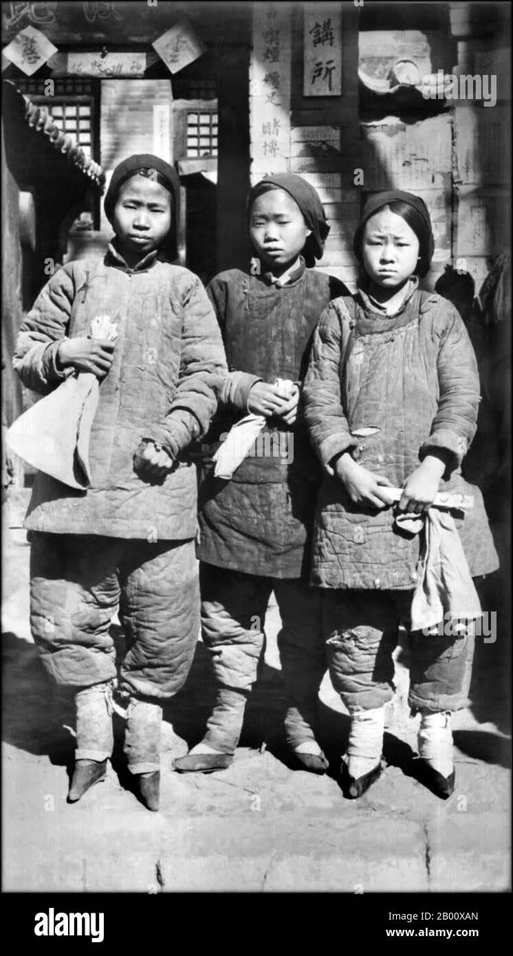 La Union De Los Pies Pinyin Chanzu Literalmente Pies Atados Era Una Costumbre Practicada En Ninas