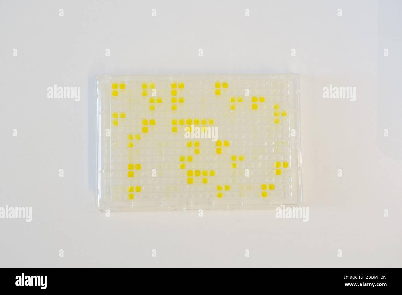 Brunswick, Alemania. 1 de abril de 2020. Una placa Elisa con anticuerpos se encuentra en el laboratorio de la empresa de ciencias biológicas Yumab. La empresa de puesta en marcha realiza investigaciones sobre el desarrollo de anticuerpos humanos y está tratando de desarrollar fármacos contra Covid-19. Crédito: OLE Spata/dpa/Alamy Live News Foto de stock