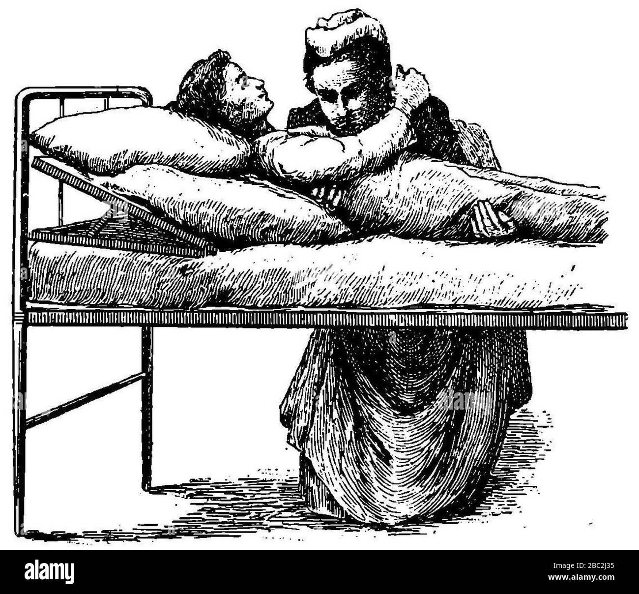 Grierson 111a Mujer levantando enfermo de la cama. Foto de stock
