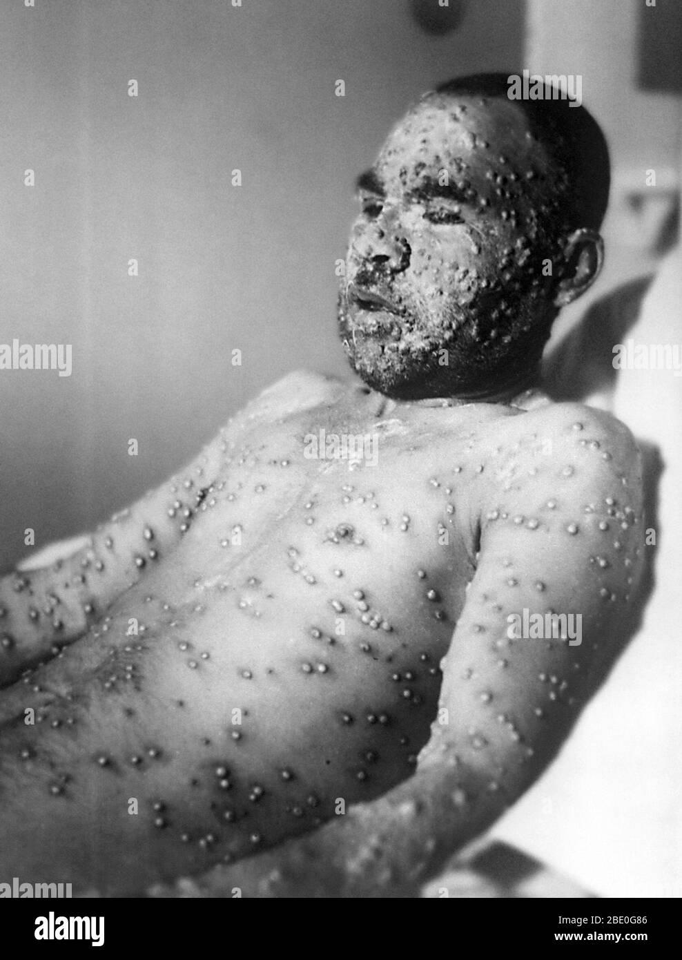 La viruela es una enfermedad viral aguda e infecciosa transmitida por contacto directo con personas infectadas. Los síntomas de fiebre comienzan 8-18 días después de la exposición. Después de 3 días, aparecen manchas rojas en la cara y el cuerpo y se convierten en pústulas del tamaño de una arveja. Las costras formadas por el secado de las pústulas dejan cicatrices permanentes. La mayoría de los pacientes se recuperan, pero la nefritis y la neumonía se presentan como complicaciones. En 1980, la Organización Mundial de la Salud declaró la viruela como una enfermedad extinta después de una campaña de vacunación mundial. Foto de stock