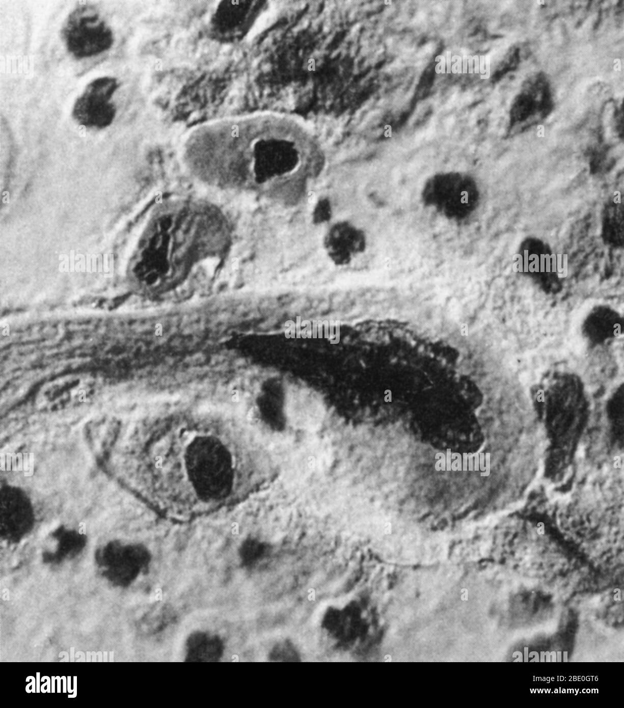 Micrográfico que muestra células de cáncer de pulmón avanzado. Las células enfermas están deformadas e hinchadas. Foto de stock
