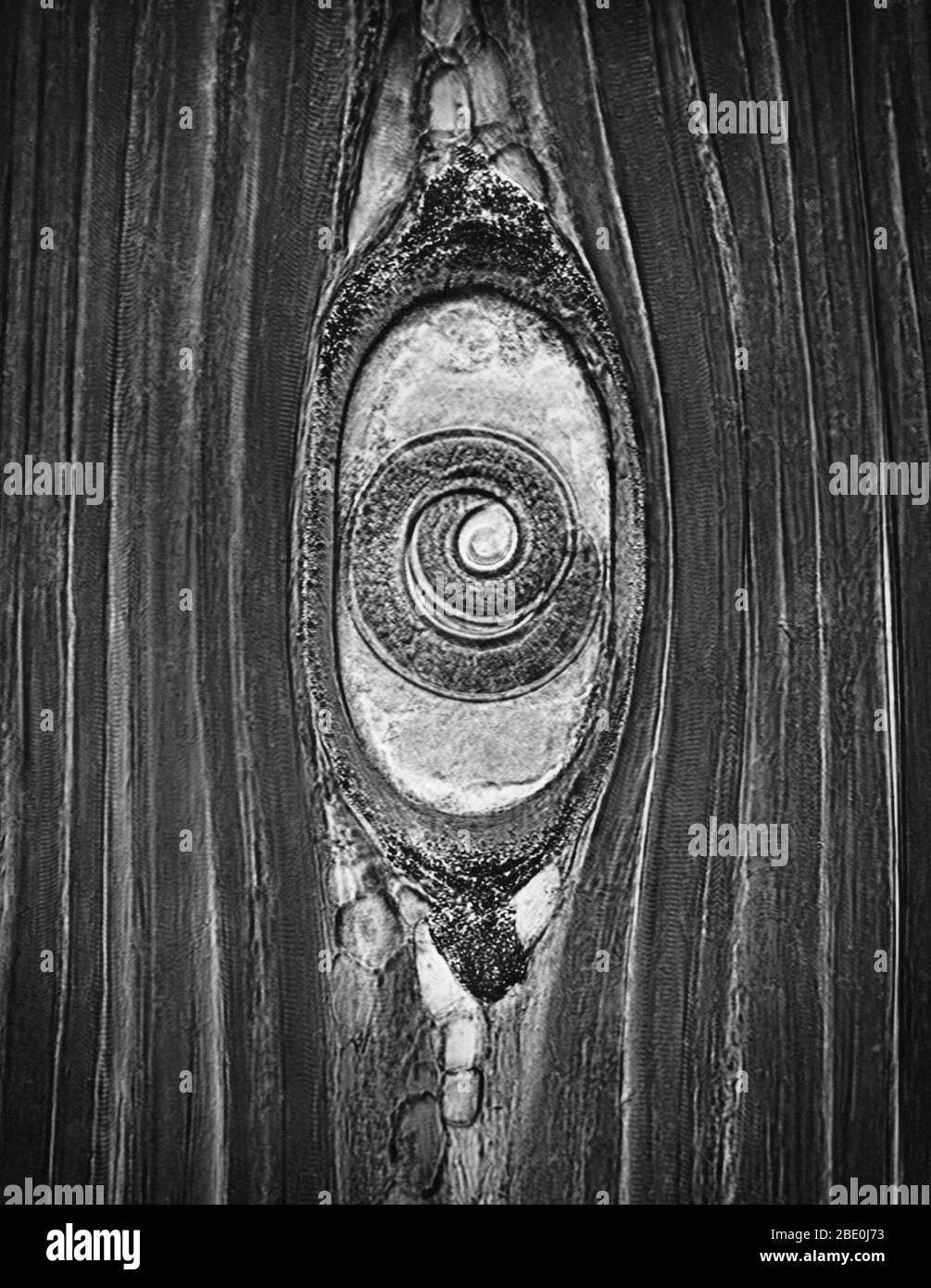 Micrografo ligero de músculo con Trichinella spiralis encisted, un parásito nematodo responsable de la enfermedad trichinosis. Ampliación: 300X. Foto de stock
