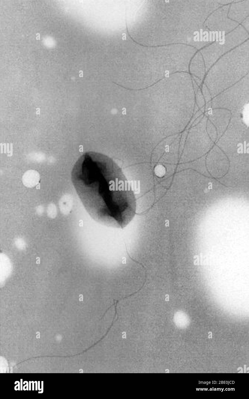 Micrografía electrónica de transmisión (TEM) de Escherichia coli (E. coli) O157:H7 mostrando flagella (técnica pseudoreplica). La bacteria es una causa conocida de enfermedades transmitidas por los alimentos. La cepa de E. coli, O157:H7, fue reconocida por primera vez en 1982 durante un brote de diarrea severa que fue causada por hamburguesas contaminadas. La infección puede prevenirse asegurándose de que la carne se cocina bien. Escherichia coli es una bacteria coliforme en forma de varilla, anaerobia facultativa y gram negativa del género Escherichia que se encuentra comúnmente en el intestino inferior de los organismos de sangre caliente (endotermas). Magni Foto de stock