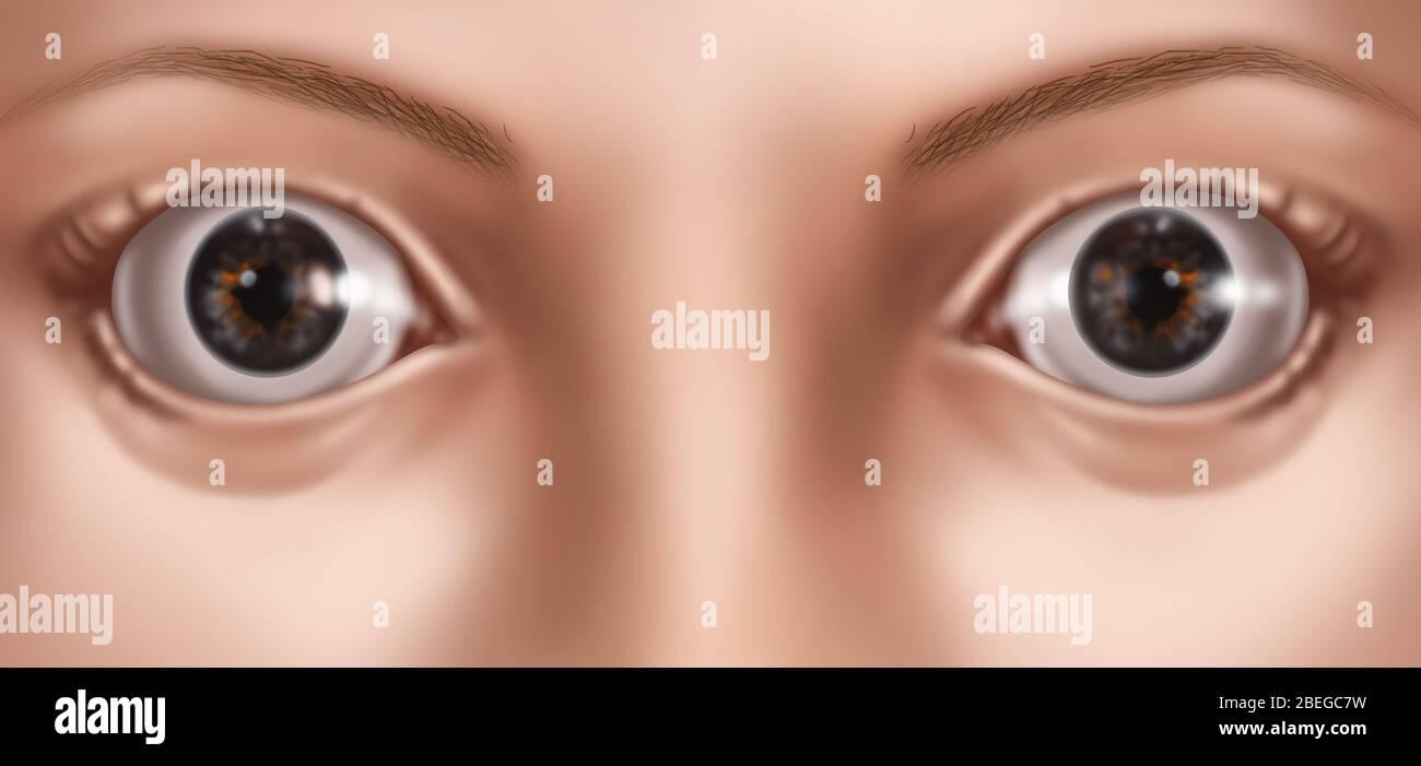 Ojos abultados, Ilustración Foto de stock