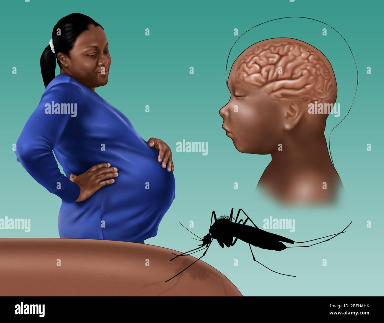 La microcefalia es una afección médica en la cual el cerebro no se desarrolla adecuadamente, lo que resulta en una cabeza más pequeña de lo normal. La microcefalia puede estar presente al nacer o puede desarrollarse en los primeros años de vida. A menudo, las personas con el trastorno tienen una discapacidad intelectual, una función motora deficiente, un habla deficiente, características faciales anormales, convulsiones y enanismo. Los bebés pueden sufrir de microcefalia congénita si sus madres estaban infectadas con el virus Zika mientras estaban embarazadas. El virus Zika es un flavivirus transmitido por mosquitos que está estrechamente relacionado con el virus del dengue. La transmisión ocurre principalmente a través de mordeduras de Foto de stock