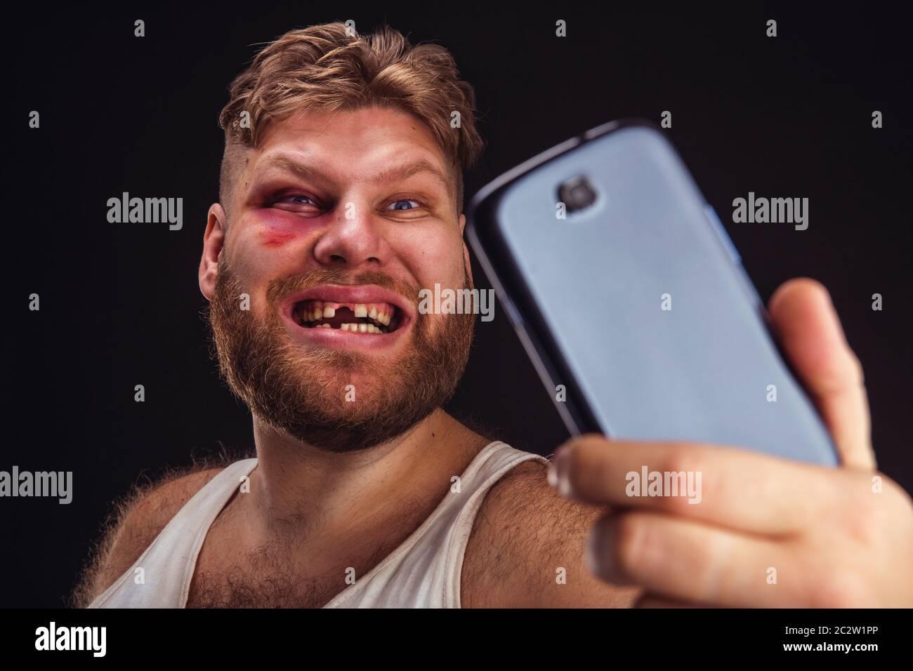 Hombre con hematoma y sin dientes selfie lleva más negro Foto de stock