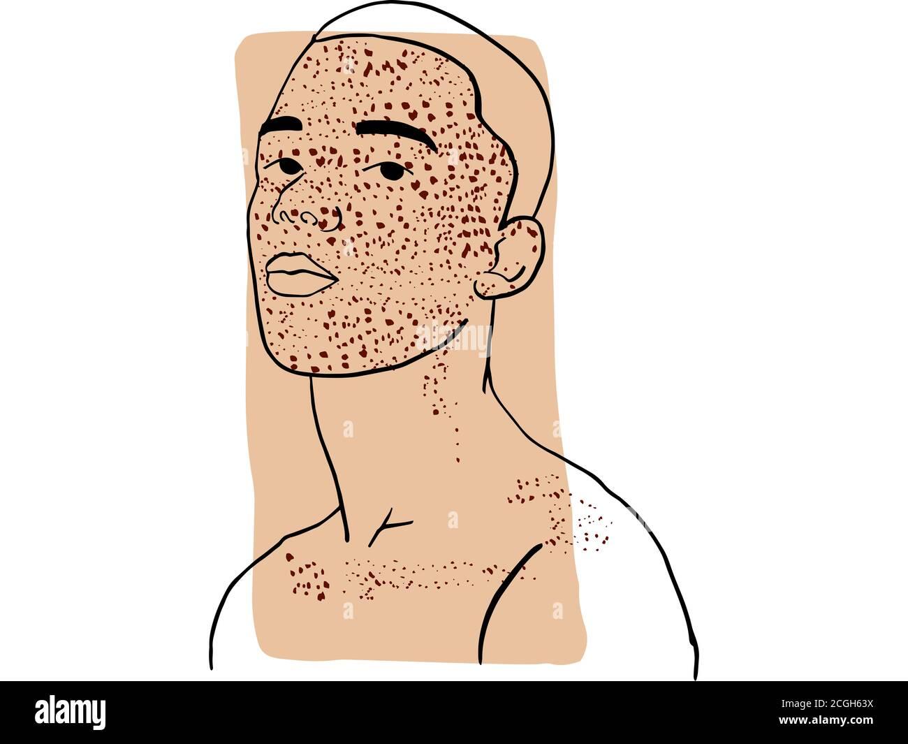 Dibujo a mano retrato de un joven con su cara cubierta por pecas y color beige oscuro muestra. Colección abstracta de diferentes personas y piel Foto de stock