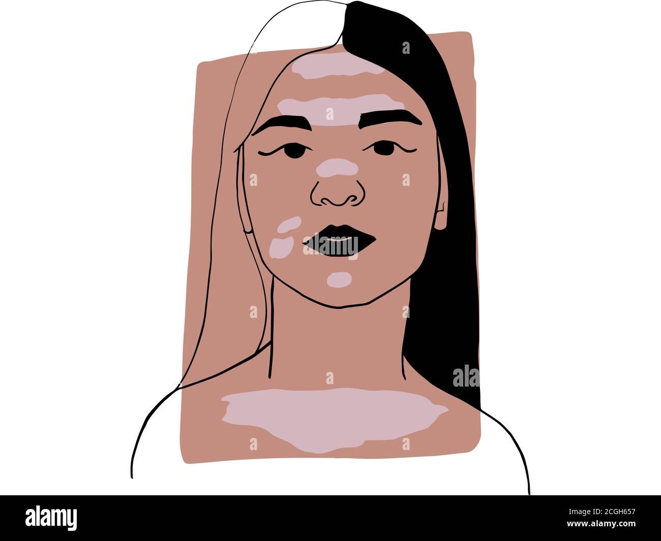 Dibujo a mano retrato de una joven con vitiligo y color de muestra beige oscuro. Colección abstracta de diferentes personas y tonos de piel. Buceadores Foto de stock