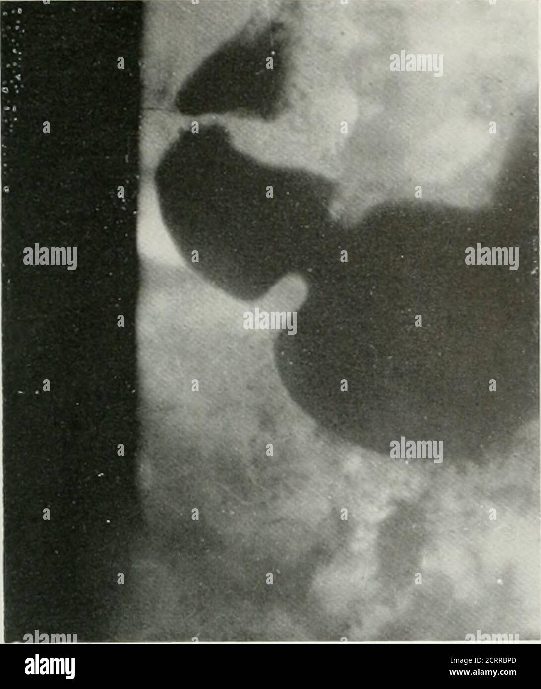 . La revista americana de roentgoenología, terapia de radio y medicina nuclear. Fig. i y Ilustra un velo tailandés ii < superficie exterior ol el i ap, thi gall i Lad lei y h< ■ re del colon lleno de g Fig. i el 4. Demontrant une voile qui comprend la surface ieureladu b ale, vesicule biliaire et la flexion tique du colon emplie pai l<Fig. j et V- Ilustrando un velo que envuelve la caxa externa delbulbo y duodenal, la vesfcula biliai y al Utica del colon. Velos en el hipocondrio derecho 43. Foto de stock