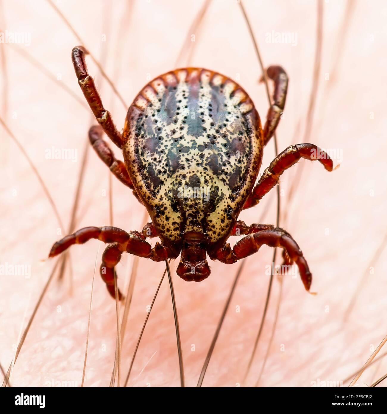 Encefalitis infecciosa garrapata insecto en la piel. Encefalitis virus o enfermedad de Lyme Borreliosis Dermacentor infectado parásito de garrapata Arachnid Macro. Foto de stock