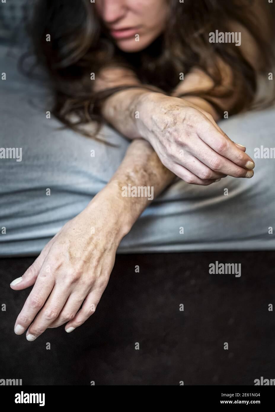 Auto daño a una mujer enferma desilusionada frustrada acostada en la cama con fuertes cortes autoinfligidos y cicatrices de automutilación en frustración, autoabuso Foto de stock