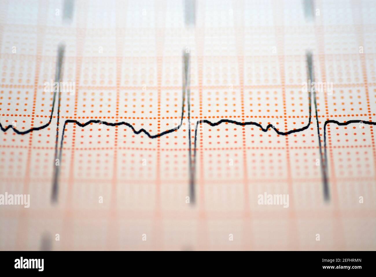Close-up de un informe de ECG Foto de stock
