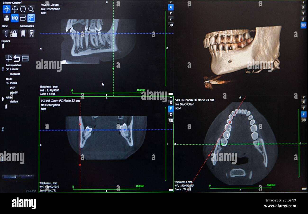 Reconstrucción 3D a partir de una imagen TAC de la mandíbula de un paciente para una impresión 3D personalizada. Foto de stock